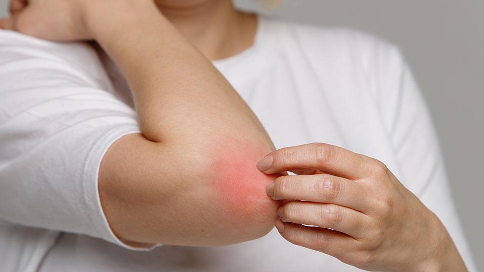 Dermatite Atópica – Controle os sintomas deste problema constrangedor e melhore as suas relações sociais